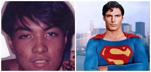 Un filipino se operó 23 veces para ser igual a Superman